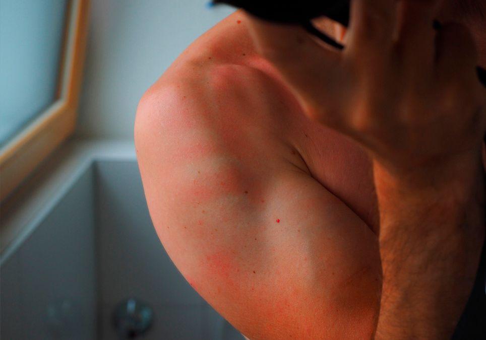 Piel roja tras tomar el sol